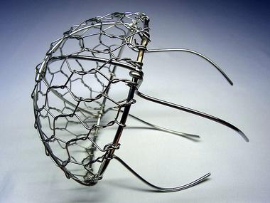 「防塵網・落ち葉よけ金網・クラゲ」ヨコから見たサンプル画像です。